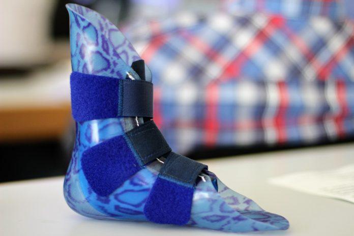 Quem precisa comprar prótese pode usar o FGTS