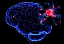 Novo tratamento desenvolvido por pesquisadores canadenses é esperança para portadores de Parkinson