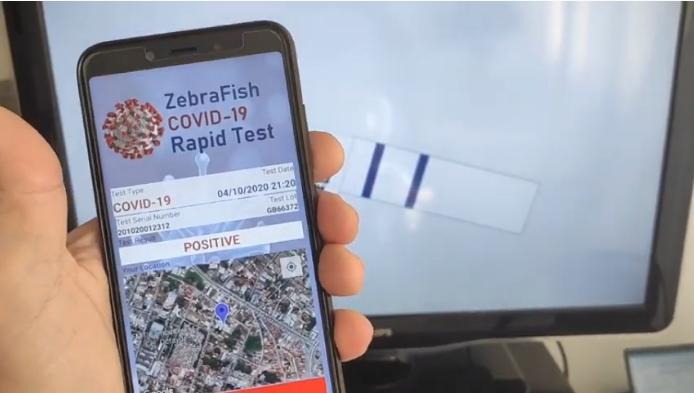 O aplicativo criado pelos professores da USP para gerar teste rápido e barato para a Covid-19. Foto - Departamento de Patologia da Faculdade de Medicina da USP